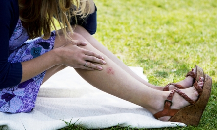 Remedies To Get Rid Of Scabies That Will Actually Work