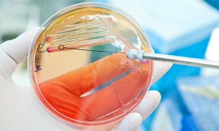 Top 9 Foodborne Illnesses And What They Do To You