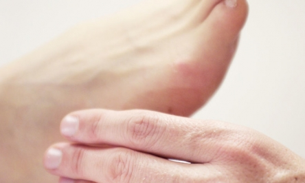 The 10 Most Common Foot Problems In Adults