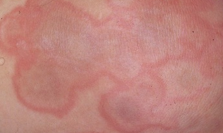 All About Rashes From Lyme Disease And Lyme Disease Treatment