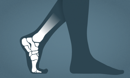 7 Warning Signs And Symptoms Of Severe Foot Problems